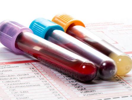 Причины отклонения от нормы содержания ренина в крови