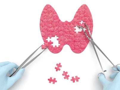 Почему появляется АИТ щитовидки