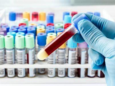 Что такое антитела к тиреопероксидазе?
