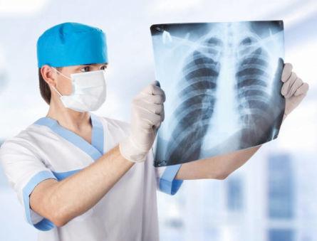 Современные методы лечения опасной опухоли вилочковой железы (тимомы)