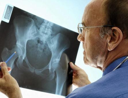 Синдром Альберс-Шенберга – проявления патологического состояния и риски