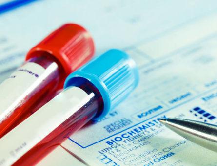 Причины отклонений от нормы сывороточного железа в крови и способы восстановления