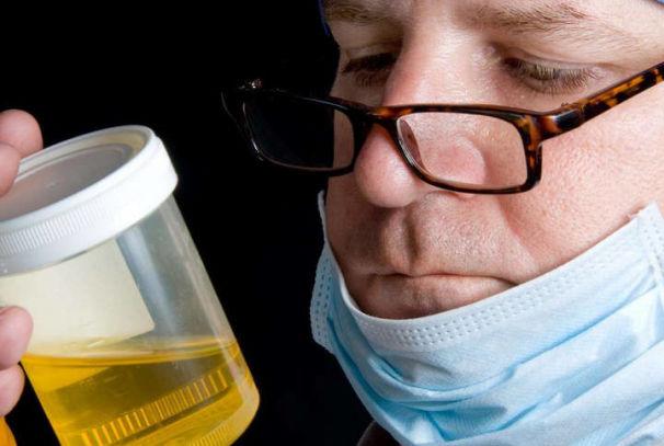 Повышенное содержание ацетона в моче у взрослого человека