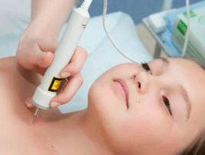 Лечение гипотиреоза рефлексотерапией