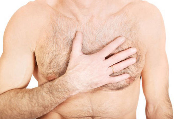 Причинные факторы, симптоматика и профилактические меры гинекомастии у мужчин