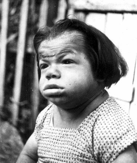 Фото кретинизм у детей