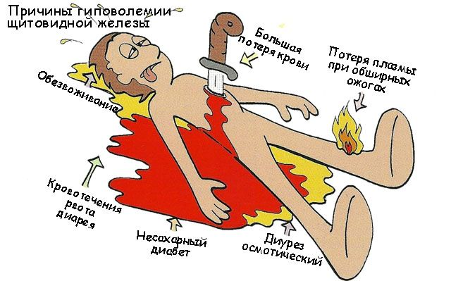 Причины гиповолемии
