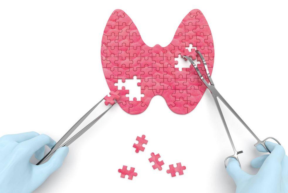 Диагноз АИТ щитовидной железы
