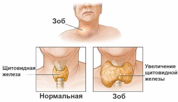 как определить увеличение щитовидной железы