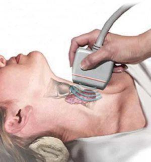 узи щитовидной железы как подготовиться