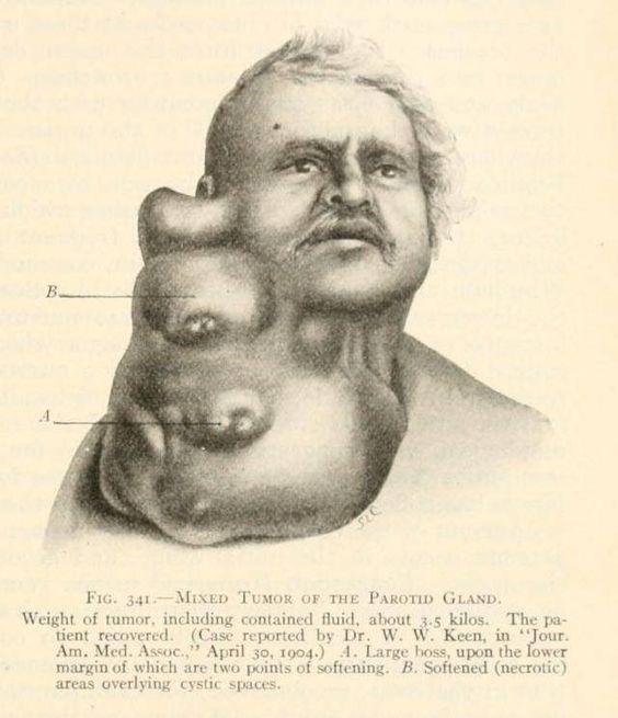 лечение гипертрофии щитовидки
