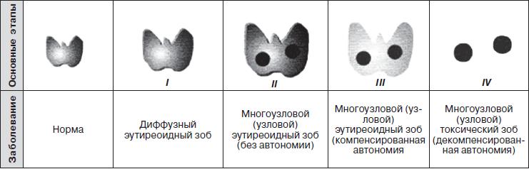 гипертрофия щитовидной железы зоб
