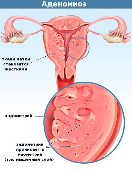 Аденомиоз при климаксе лечение в пременопаузе
