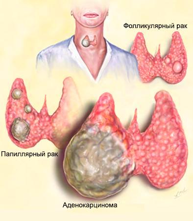 сколько живут при раке щитовидной железы