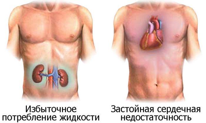 Вазопрессин и функции почек, сердца