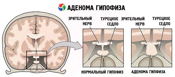 Аденома гипофиза головного мозга: симптомы у женщин, прогноз и лечение