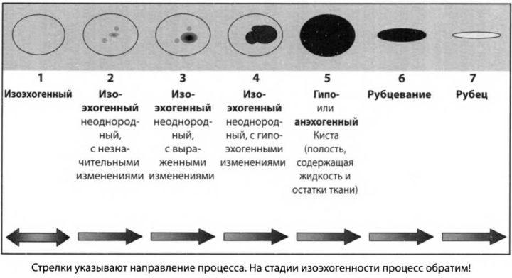 изоэхогенное образование щитовидной железы что это такое