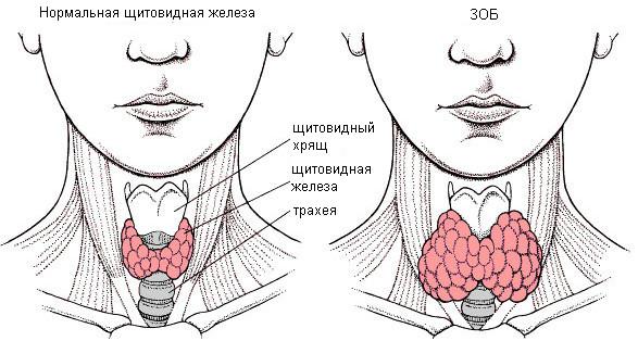 узловой нетоксический зоб щитовидной железы