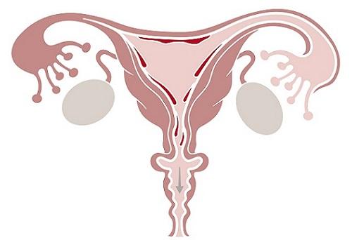 недостаточность прогестерона