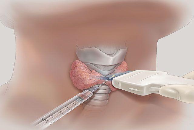 пункция щитовидной железы подготовка