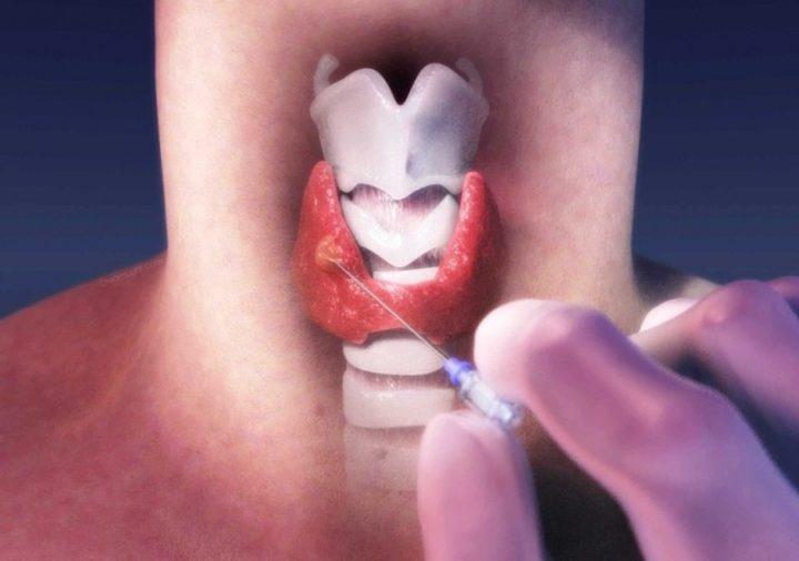 пункция щитовидной железы результаты исследования