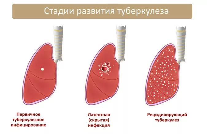 синдром аддисона