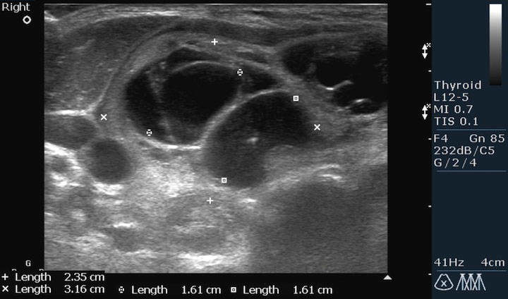 Увеличение щитовидки на УЗИ