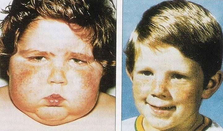 Нодулярная гиперплазия надпочечников