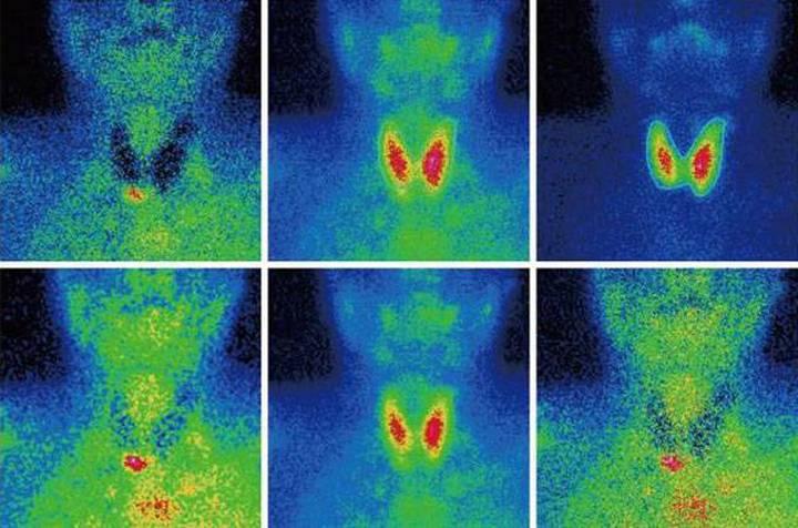 Радиоизотопное исследование щитовидной железы
