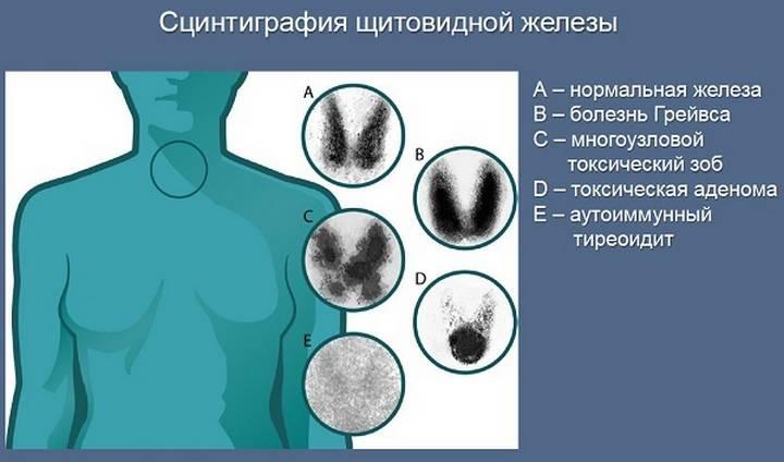 Сканирование щитовидной железы что это такое