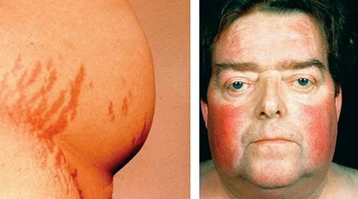 Узелковая гиперплазия надпочечника