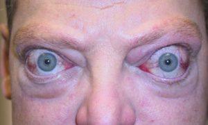 Симптомы тиреотоксического криза