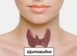 Щитовдка