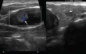 изоэхогенные и гипоэхогенные узлы щитовидки
