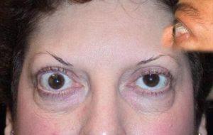 Эндокринная офтальмология