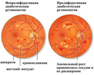 Непролиферативная ретинопатия
