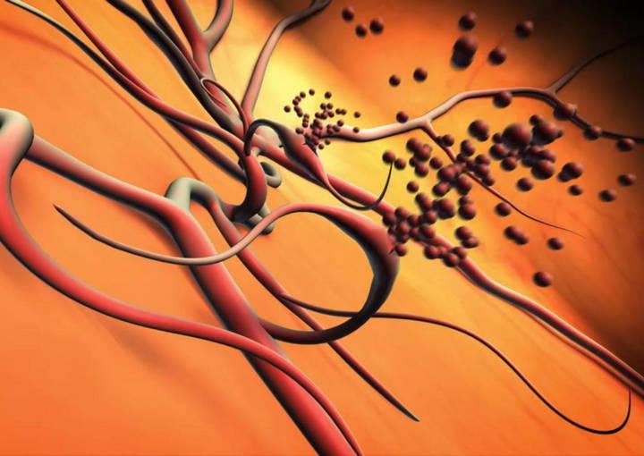 Препролиферативная ретинопатия