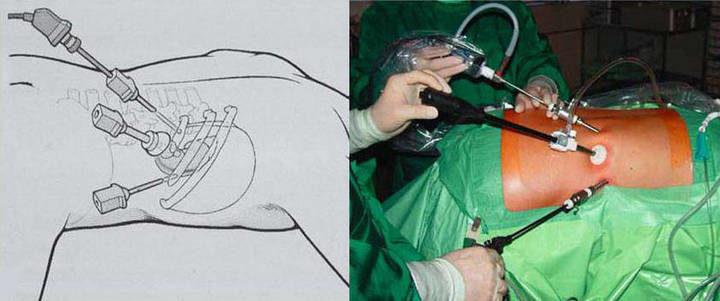 Лапароскопическая адреналэктомия