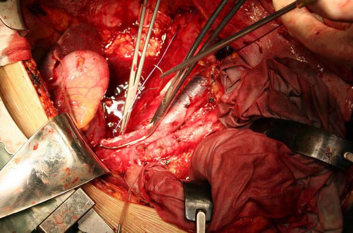 Открытая операция (адреналэктомия)