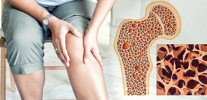 Признаки остеопороза рук и ног