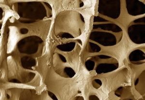 Разрушение костей