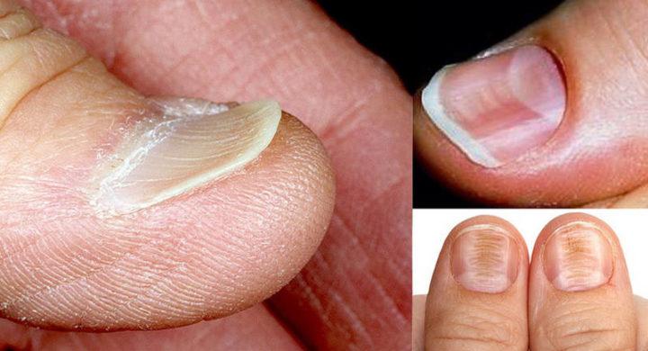 Ломкость ногтей от железодефицита