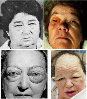 Фото людей с микседемой