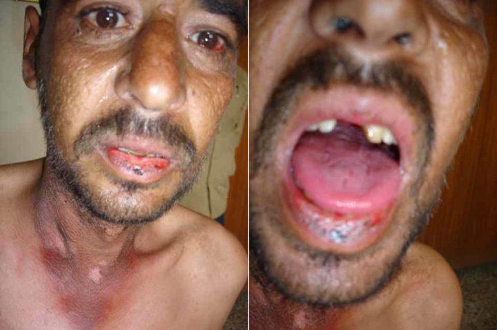 Симптомы болезни Хартнупа
