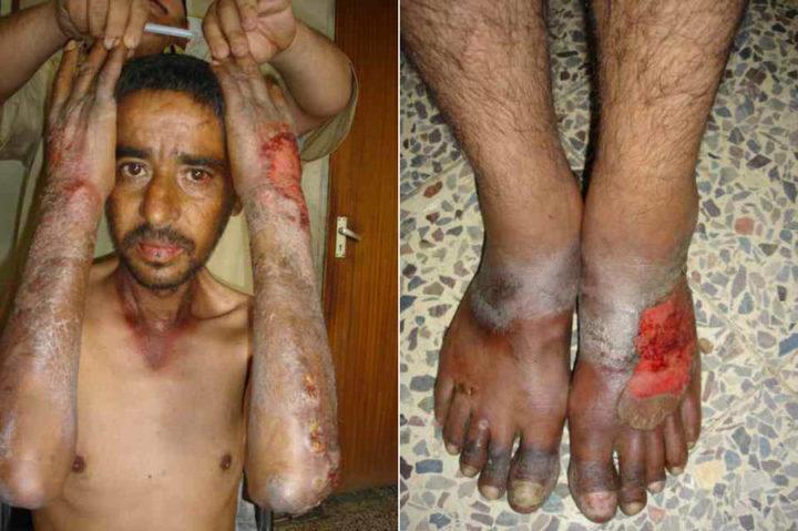 Фото кожных проявлений болезни Хартнупа