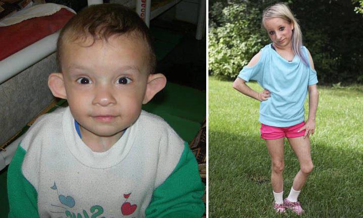 Фото детей с синдромом Рассела Сильвера